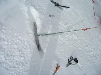 スノーバー横埋・確保支点